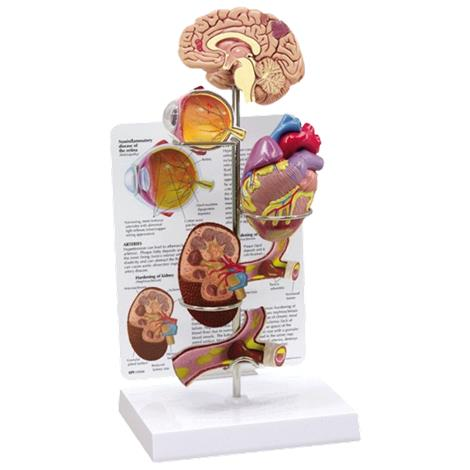 Anatomical Hypertension Model Set,13.5 Tall,Each,G400