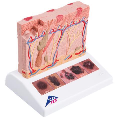 "A3BS Skin Cancer Model,5.5"" x 3.9"" x 4.5"",Each,J15"