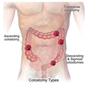 WHAT IS OSTOMY?