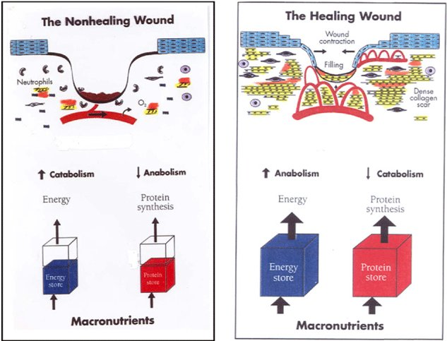 Foods To Eat To Promote Wound Healing