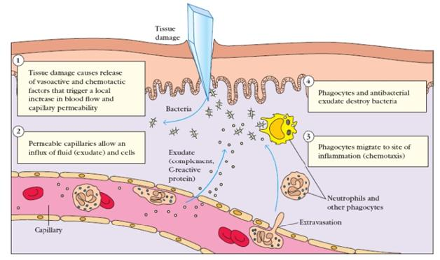 Importance of Wound Inflammation