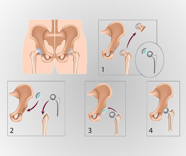 Replacing the Hip – All about Hip Replacement Surgery