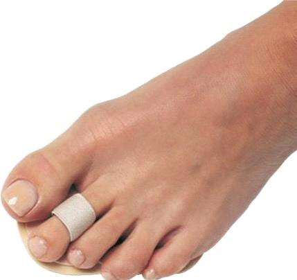 Straightening The Toe - Treatment And Solutions for Toe Problems