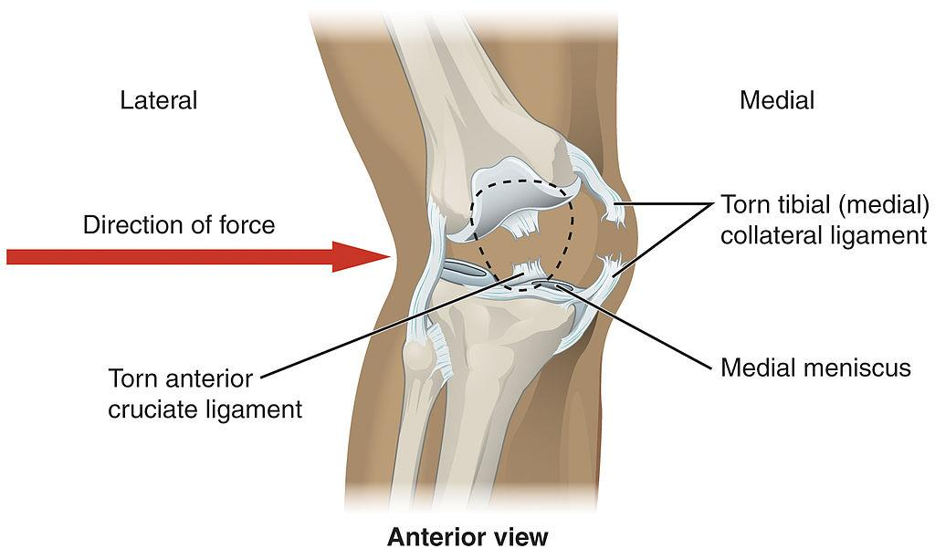 Caring For The Knee A Guide On Knee Injuries Hpfy