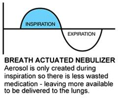 Breath Actuated Nebulizer (BAN)