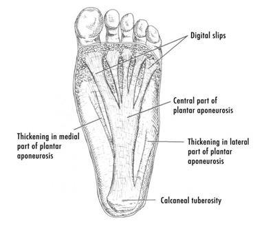 Plantar Fasciitis: Risks and Diagnosis