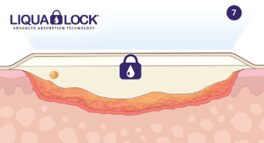 How Liqualock Technology Works