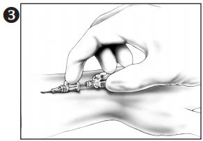 How to insert BD Autoguard Shielded Catheter?