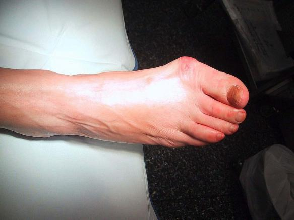 A Brief Guide to Bunions