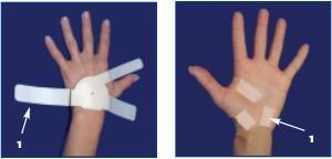 Using the Carpal Solution Carpal Tunnel Wrist Support