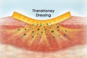 Working of TheraHoney