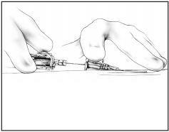 Winged AutoGuard Catheter Intructions Step 4