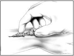 Winged AutoGuard Catheter Intructions Step 3