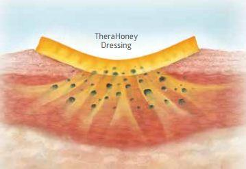How does Therahoney Gel work?