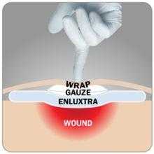 How To Use Enluxtra Dressing
